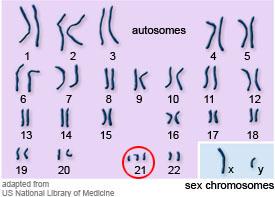 karyotypeDownSyndrome[1]